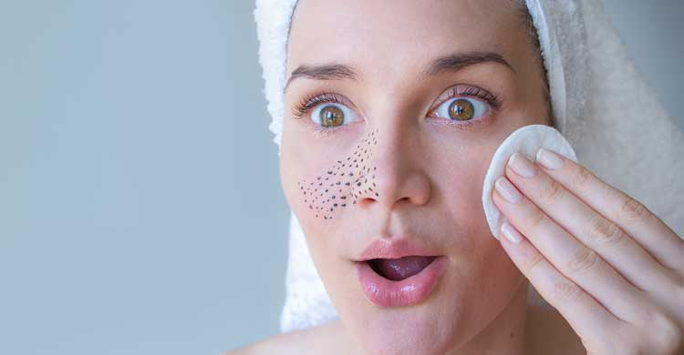Blackheads: Causes, Symptoms & How to Get Rid of Blackheads, According to Dermatologists